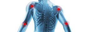 Chiropractic Milwaukie OR Fibromyalgia